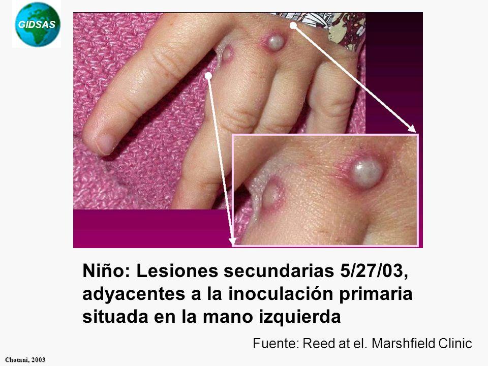 GIDSAS Chotani, 2003 Niño: Lesiones secundarias 5/27/03, adyacentes a la inoculación primaria situada en la mano izquierda Fuente: Reed at el. Marshfi