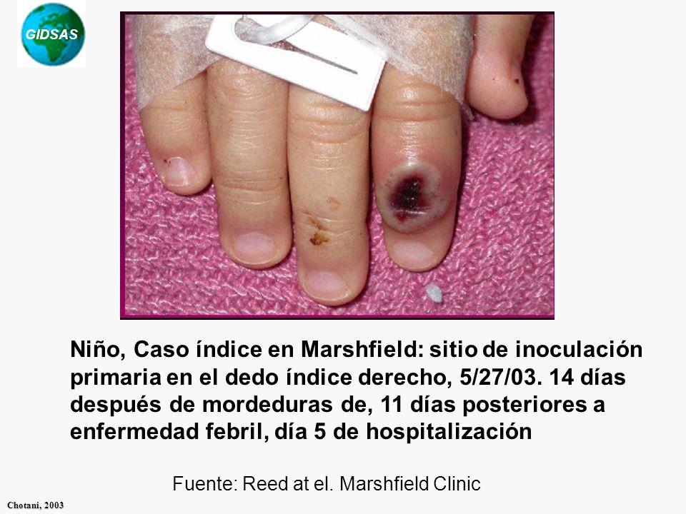 GIDSAS Chotani, 2003 Niño, Caso índice en Marshfield: sitio de inoculación primaria en el dedo índice derecho, 5/27/03. 14 días después de mordeduras