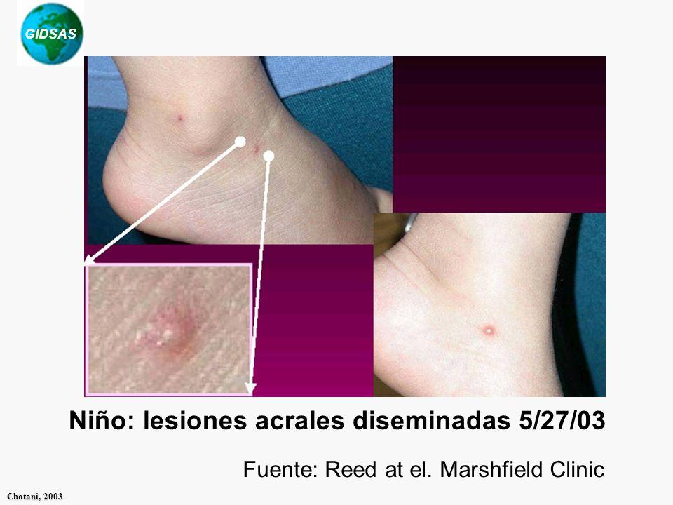 GIDSAS Chotani, 2003 Niño: lesiones acrales diseminadas 5/27/03 Fuente: Reed at el. Marshfield Clinic