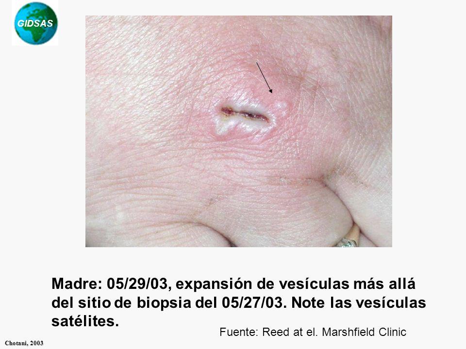 GIDSAS Chotani, 2003 Fuente: Reed at el. Marshfield Clinic Madre: 05/29/03, expansión de vesículas más allá del sitio de biopsia del 05/27/03. Note la