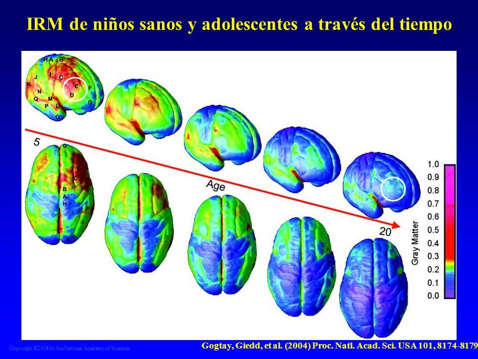 Copyright ©2004 by the National Academy of Sciences Gogtay, Giedd, et al. (2004) Proc. Natl. Acad. Sci. USA 101, 8174-8179 IRM de niños sanos y adoles