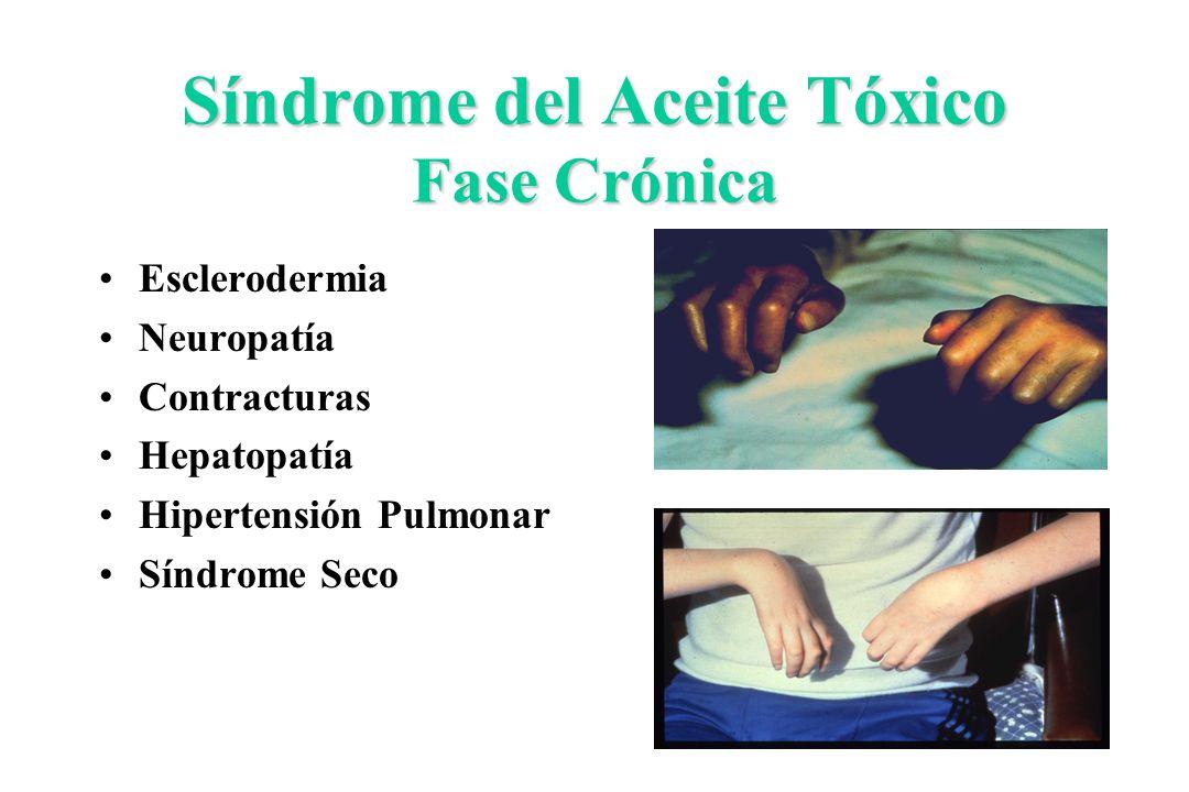 Síndrome del Aceite Tóxico Fase Crónica Esclerodermia Neuropatía Contracturas Hepatopatía Hipertensión Pulmonar Síndrome Seco