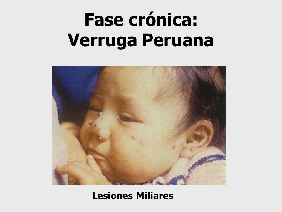 Fase crónica: Verruga Peruana Lesiones Miliares