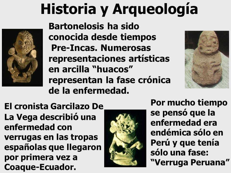 Historia y Arqueología Bartonelosis ha sido conocida desde tiempos Pre-Incas. Numerosas representaciones artísticas en arcilla huacos representan la f