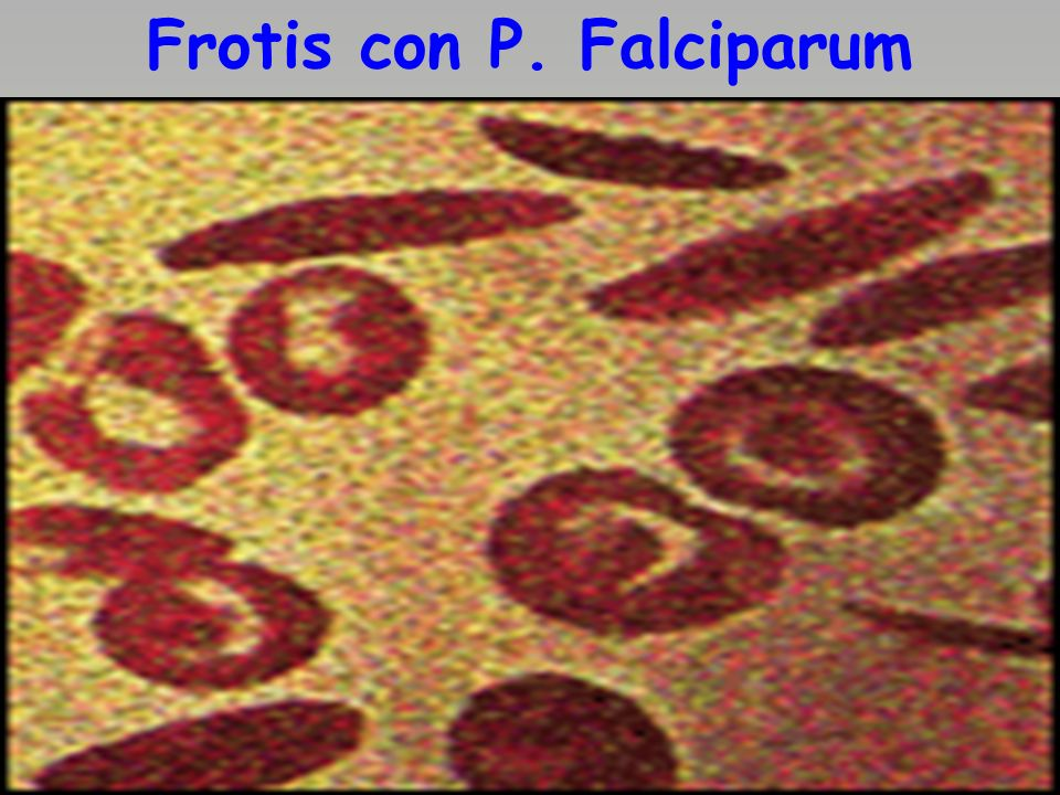 Frotis con P. Falciparum