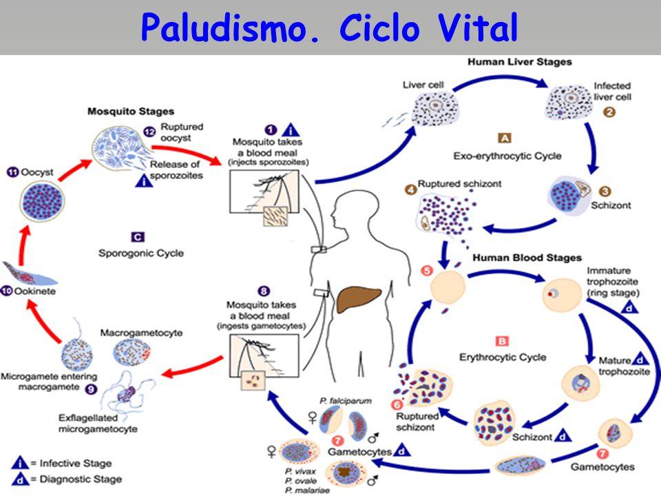Formas graves del Paludismo Las formas graves del paludismo, que incluye a la anemia severa dependen del grado de parasitemia, su intensidad de instalación y a la prontitud diagnóstica y terapéutica.Dentro de ellas el paludismo a forma cerebral, las formas edematosas pulmonares,losataques con cuadros severos de hipoglucemia y loscuadros hemorragíparos masivos con daño neurológico.