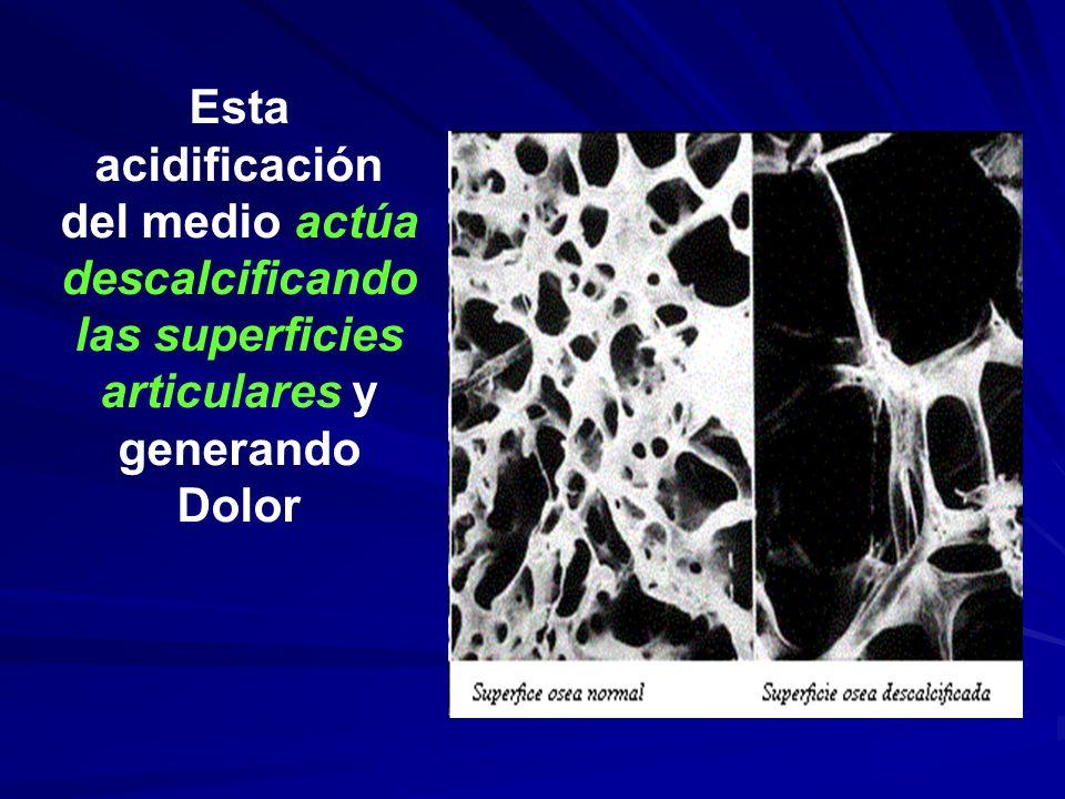 Esta acidificación del medio actúa descalcificando las superficies articulares y generando Dolor