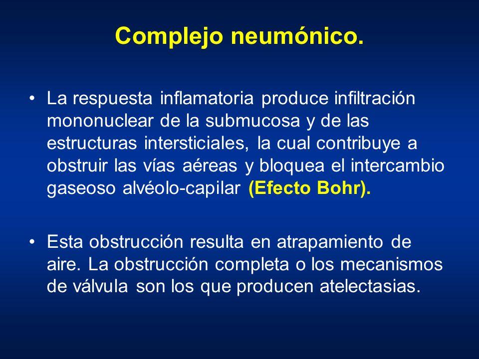 Complejo neumónico. La respuesta inflamatoria produce infiltración mononuclear de la submucosa y de las estructuras intersticiales, la cual contribuye