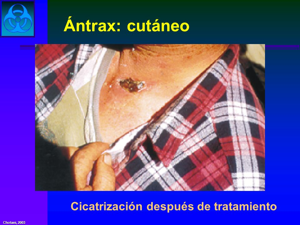Chotani, 2003 Ántrax: cutáneo Cicatrización después de tratamiento