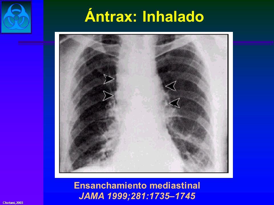 Chotani, 2003 Ensanchamiento mediastinal JAMA 1999;281:1735–1745 Ántrax: Inhalado
