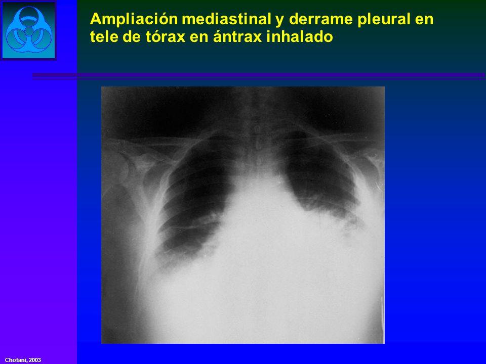 Chotani, 2003 Ampliación mediastinal y derrame pleural en tele de tórax en ántrax inhalado