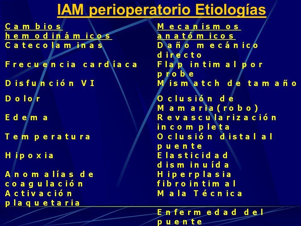 IAM perioperatorio Etiologías