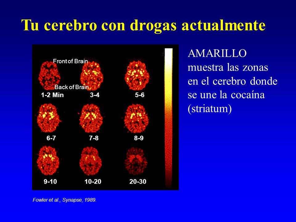 Tu cerebro con drogas actualmente 1-2 Min3-45-6 6-77-88-9 9-1010-2020-30 AMARILLO muestra las zonas en el cerebro donde se une la cocaína (striatum) F