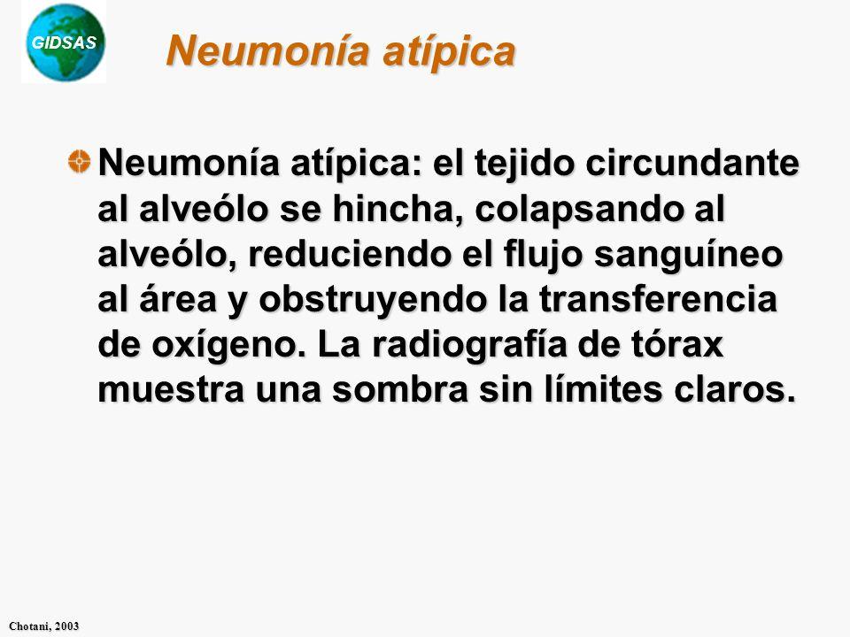 GIDSAS Chotani, 2003 Neumonía atípica Neumonía atípica: el tejido circundante al alveólo se hincha, colapsando al alveólo, reduciendo el flujo sanguíneo al área y obstruyendo la transferencia de oxígeno.