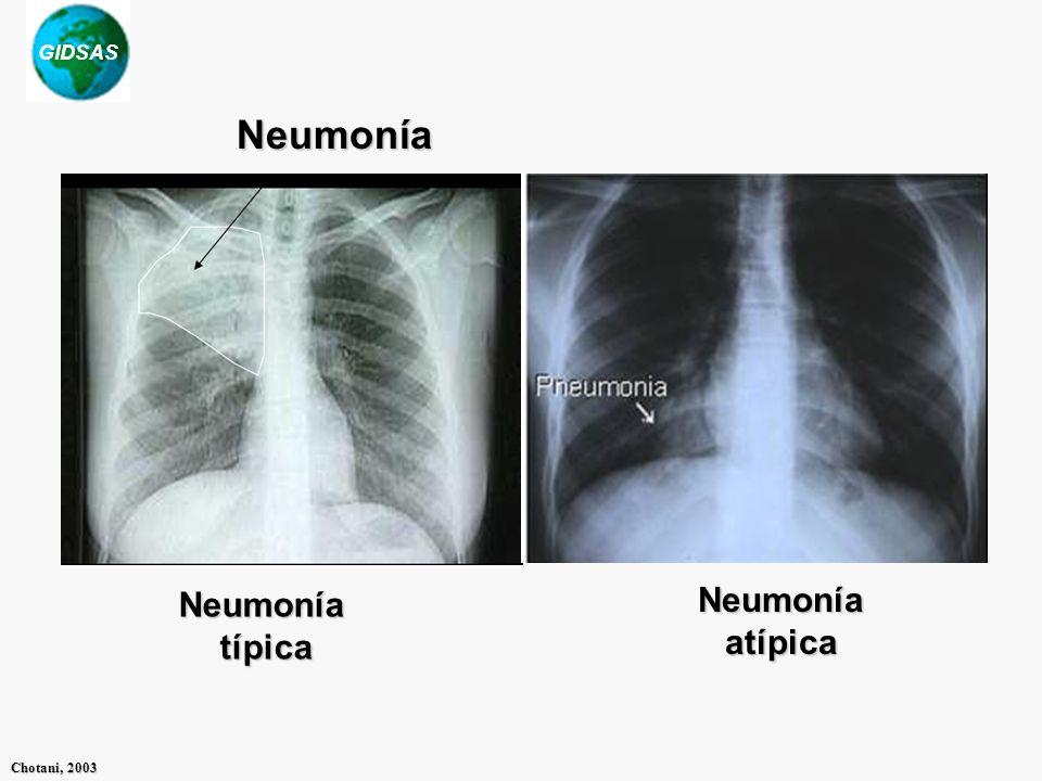 GIDSAS Chotani, 2003 Neumoníatípica Neumoníaatípica Neumonía