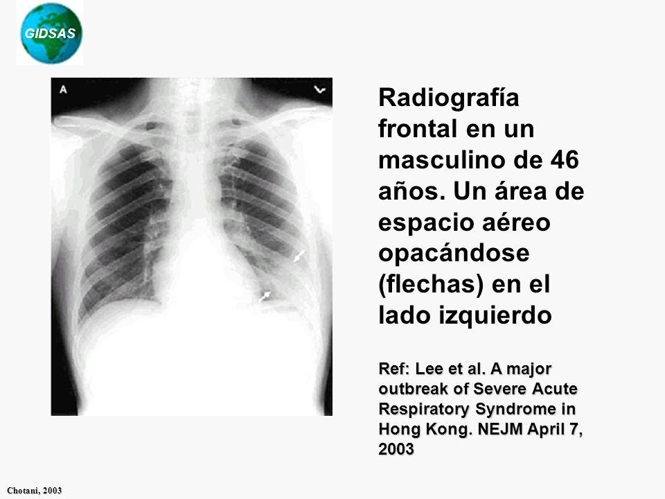 GIDSAS Chotani, 2003 Radiografía frontal en un masculino de 46 años. Un área de espacio aéreo opacándose (flechas) en el lado izquierdo Ref: Lee et al