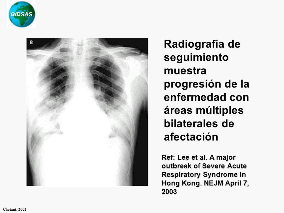 GIDSAS Chotani, 2003 Radiografía de seguimiento muestra progresión de la enfermedad con áreas múltiples bilaterales de afectación Ref: Lee et al.