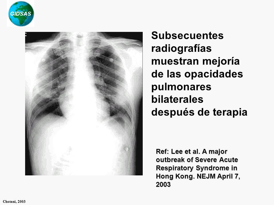 GIDSAS Chotani, 2003 Subsecuentes radiografías muestran mejoría de las opacidades pulmonares bilaterales después de terapia Ref: Lee et al. A major ou