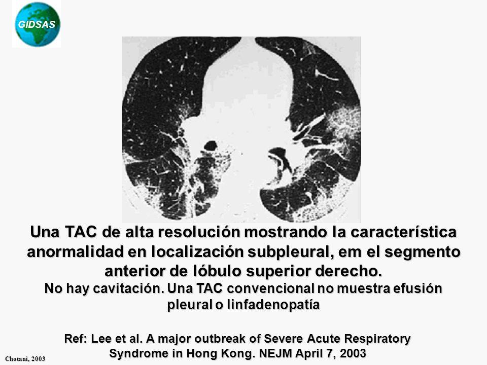 GIDSAS Chotani, 2003 Una TAC de alta resolución mostrando la característica anormalidad en localización subpleural, em el segmento anterior de lóbulo superior derecho.