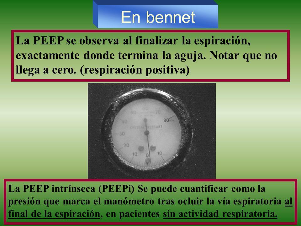 La PEEP se observa al finalizar la espiración, exactamente donde termina la aguja. Notar que no llega a cero. (respiración positiva) La PEEP intrínsec