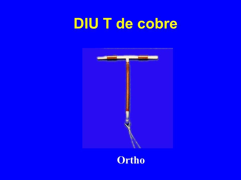 DIU T de cobre Ortho