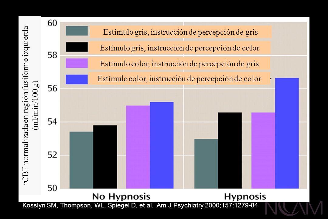 Estímulo gris, instrucción de percepción de gris Estímulo gris, instrucción de percepción de color Estímulo color, instrucción de percepción de gris E