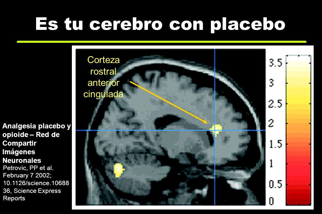 Es tu cerebro con placebo Petrovic, PP et al. February 7 2002; 10.1126/science.10688 36, Science Express Reports Analgesia placebo y opioide – Red de