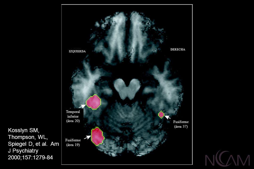 Fusiforme (área 19) Fusiforme (área 37) Temporal inferior (área 20) IZQUIERDA DERECHA