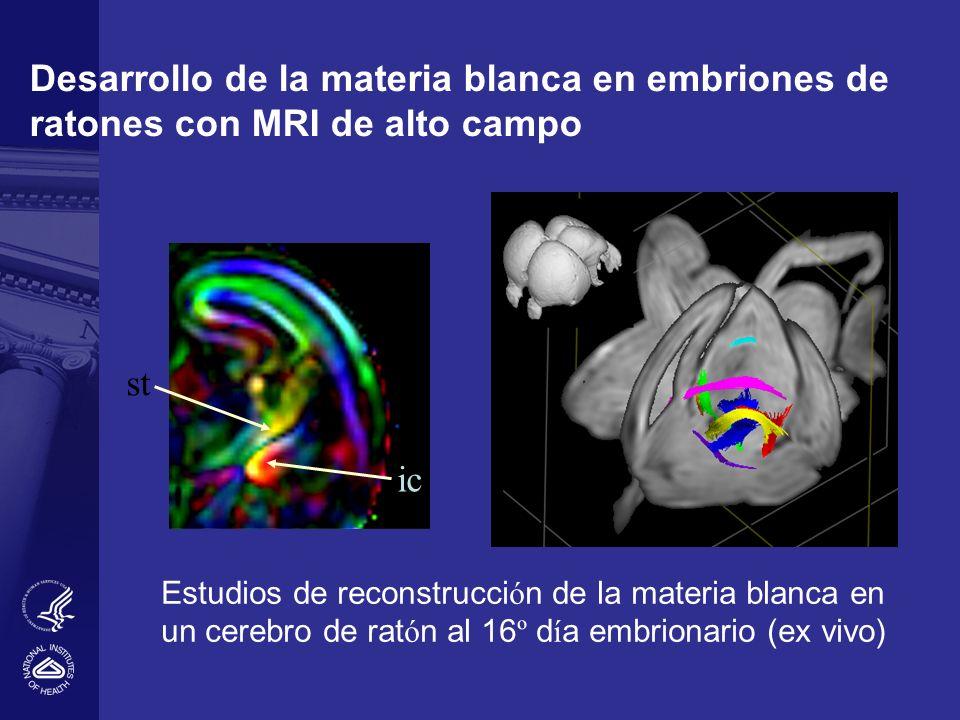 Desarrollo de la materia blanca en embriones de ratones con MRI de alto campo ic st Estudios de reconstrucci ó n de la materia blanca en un cerebro de