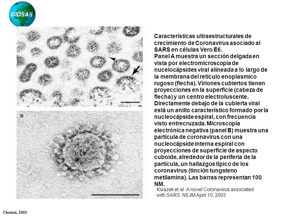 GIDSAS Chotani, 2003 Características ultraestructurales de crecimiento de Coronavirus asociado al SARS en células Vero E6. Panel A muestra un sección