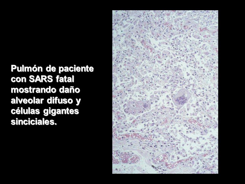 Pulmón de paciente con SARS fatal mostrando daño alveolar difuso y células gigantes sinciciales.