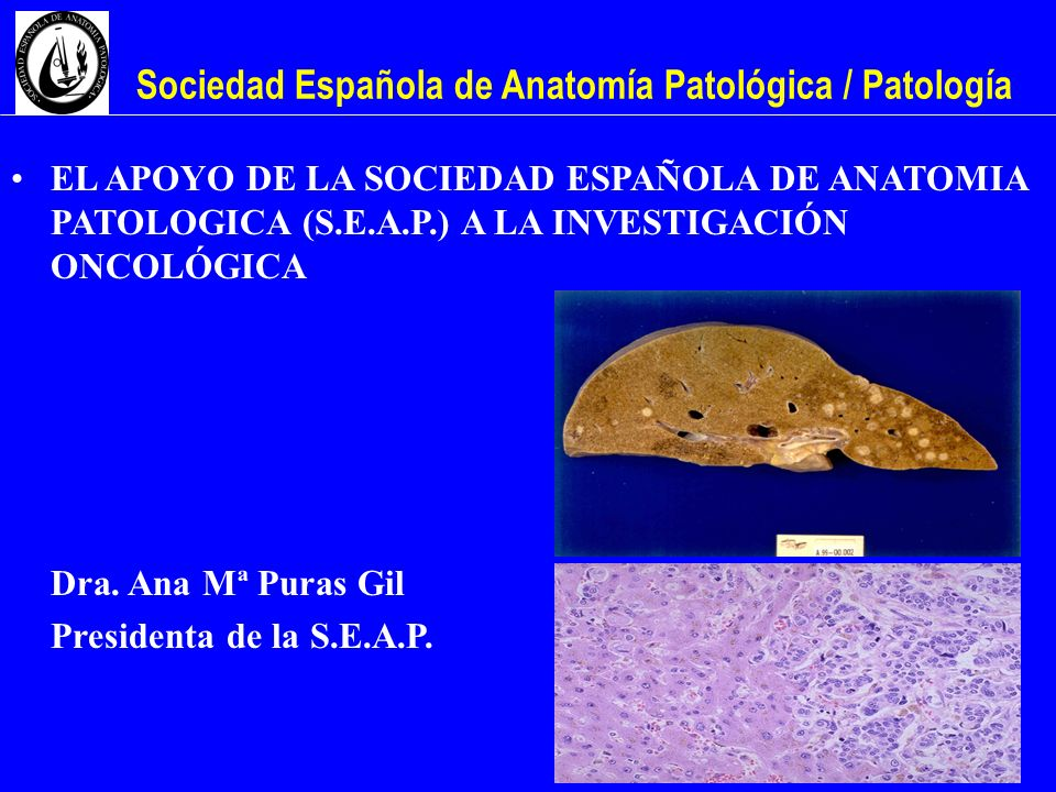 Sociedad Española de Anatomía Patológica / Patología EL APOYO DE LA SOCIEDAD ESPAÑOLA DE ANATOMIA PATOLOGICA (S.E.A.P.) A LA INVESTIGACIÓN ONCOLÓGICA