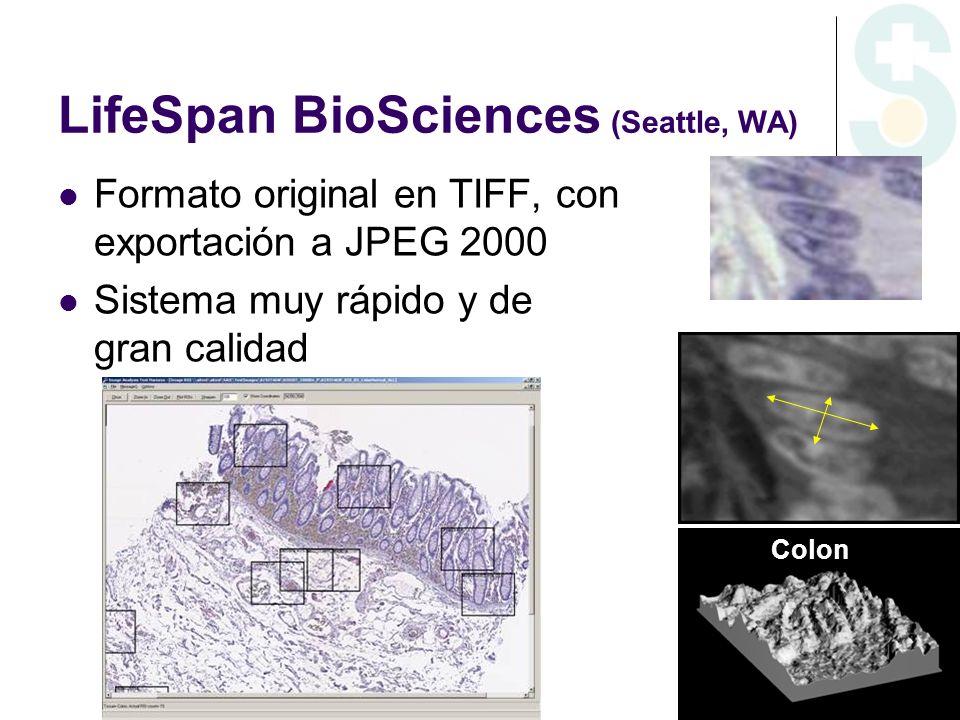 LifeSpan BioSciences (Seattle, WA) Formato original en TIFF, con exportación a JPEG 2000 Sistema muy rápido y de gran calidad Colon
