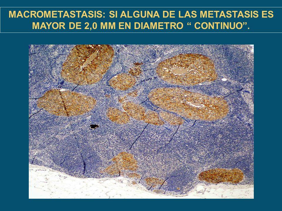 MACROMETASTASIS: SI ALGUNA DE LAS METASTASIS ES MAYOR DE 2,0 MM EN DIAMETRO CONTINUO.