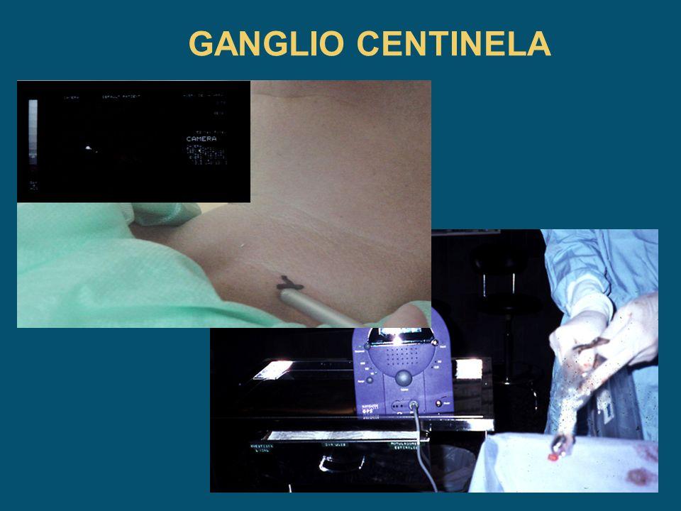 Ganglio centinela Cambio en el sistema de estudio de la afectación ganglionar en cáncer de mama.