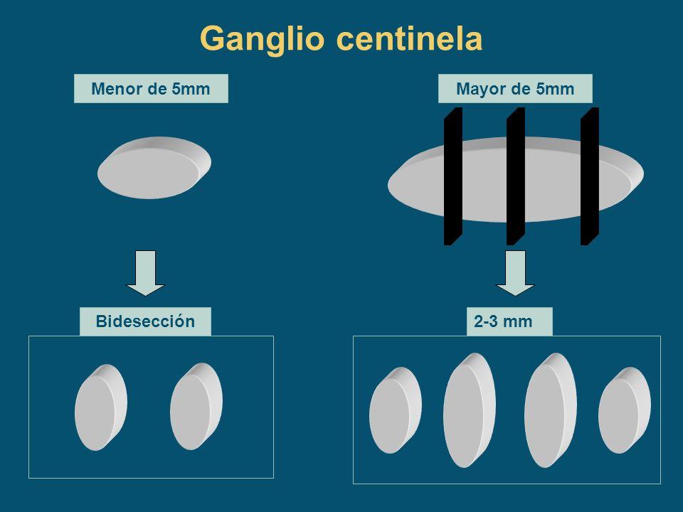 Tipo histológico Carcinoma ductal infiltrante: 21 Carcinoma lobulillar infiltrante: 4 CDI+ extenso componente intraductal: 5 Carcinoma intraductal: 14 Carcinoma lobulillar in situ: 3