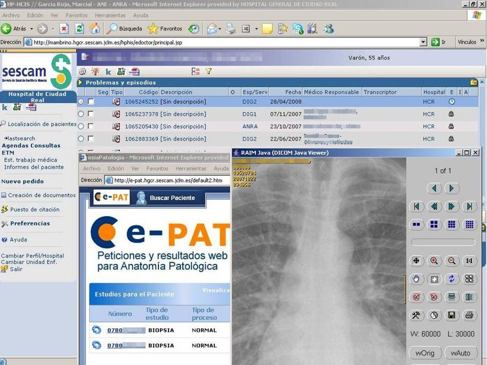 Servicio de Salud de Castilla-La Mancha Situación actual Mambrino / Mambrino XXI Laboratorio (SigloWeb) Cartelería digital