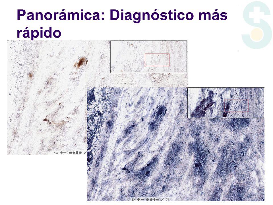 Panorámica: Diagnóstico más rápido