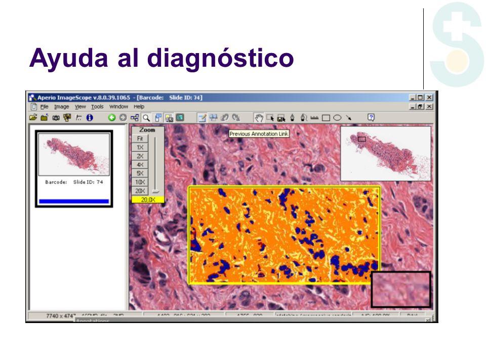 Ayuda al diagnóstico