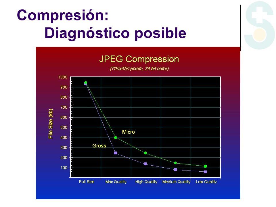 Aperio Scanscope T2 Tiras de imágenes TIFF (.svs) con solapamiento (stitching) exportables a JPEG 2000, compresión óptima Sistema rápido y de alta resolución, con calidad excelente Preparaciones en red, base de datos Precio: XT: 120.000 euros CS: 70.000 euros