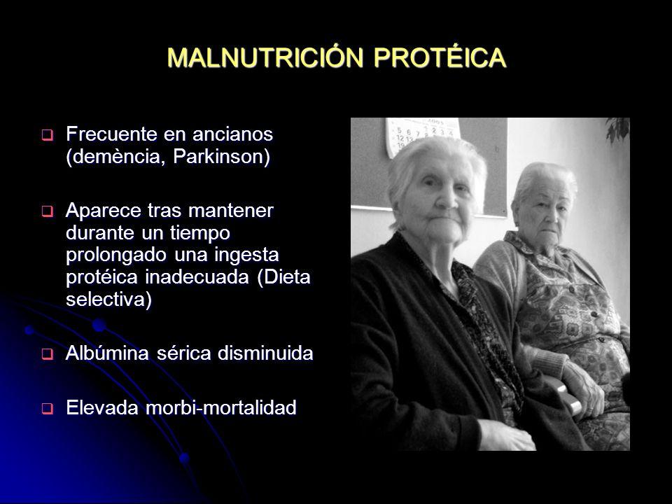 MALNUTRICIÓN PROTÉICA Frecuente en ancianos (demència, Parkinson) Frecuente en ancianos (demència, Parkinson) Aparece tras mantener durante un tiempo