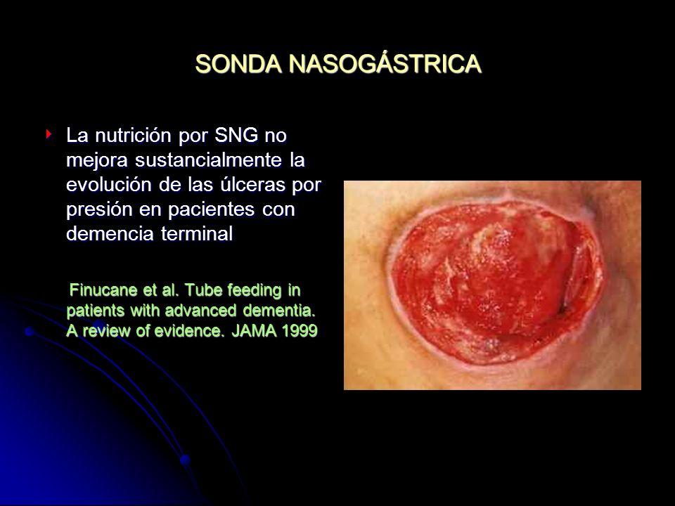 SONDA NASOGÁSTRICA La nutrición por SNG no mejora sustancialmente la evolución de las úlceras por presión en pacientes con demencia terminal La nutric