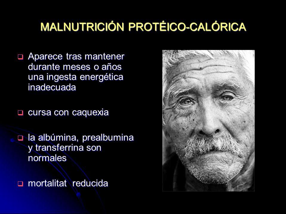 MALNUTRICIÓN PROTÉICA Frecuente en ancianos (demència, Parkinson) Frecuente en ancianos (demència, Parkinson) Aparece tras mantener durante un tiempo prolongado una ingesta protéica inadecuada (Dieta selectiva) Aparece tras mantener durante un tiempo prolongado una ingesta protéica inadecuada (Dieta selectiva) Albúmina sérica disminuida Albúmina sérica disminuida Elevada morbi-mortalidad Elevada morbi-mortalidad