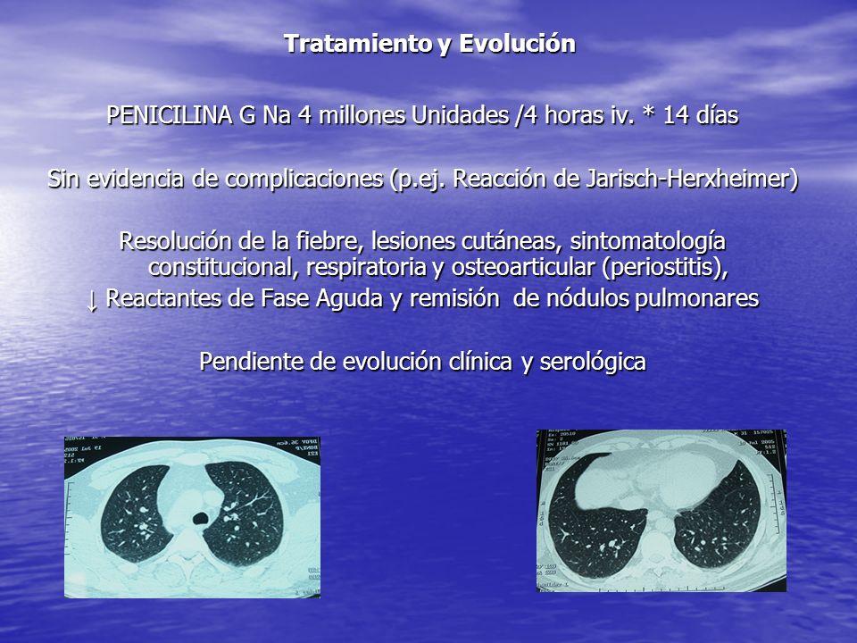 SIFILIS Transmisión -Sexual (fundamentalmente) -Vertical (materno-fetal)