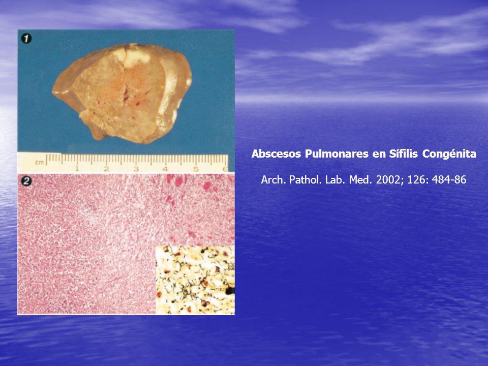 Sífilis Secundaria con Nódulos Pulmonares Múltiples CHEST 2004; 125:2322-27