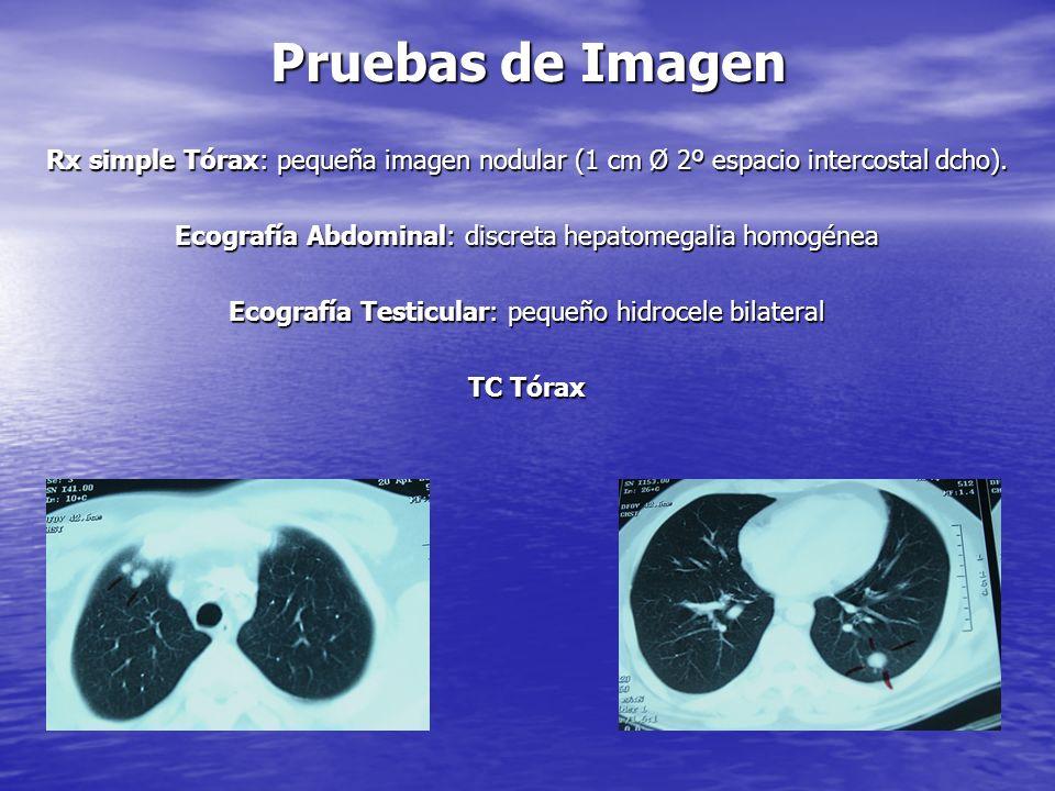 Pruebas de Laboratorio Hb: 13. Leucoc: 7970 (fórmula normal). Plaquetas: 453000. VSG: 21. PCR: 10 Ferritina: 811 Glucosa: 121. Coagulación, Función Re