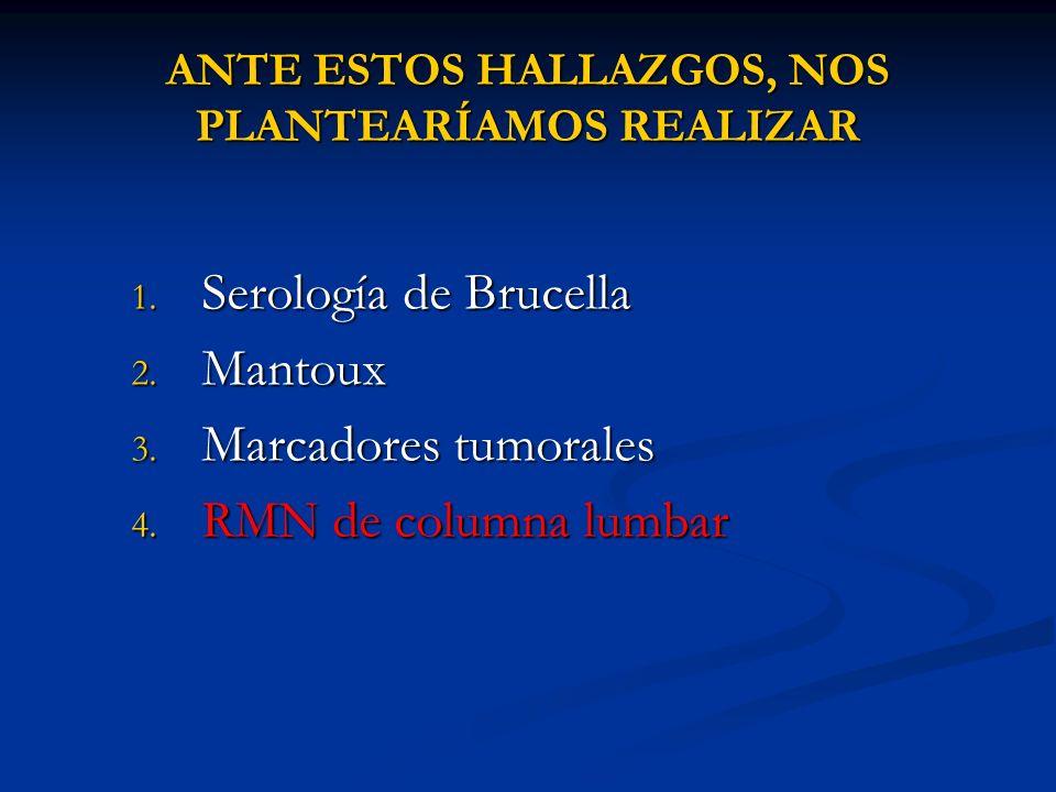 ANTE ESTOS HALLAZGOS, NOS PLANTEARÍAMOS REALIZAR 1. Serología de Brucella 2. Mantoux 3. Marcadores tumorales 4. RMN de columna lumbar