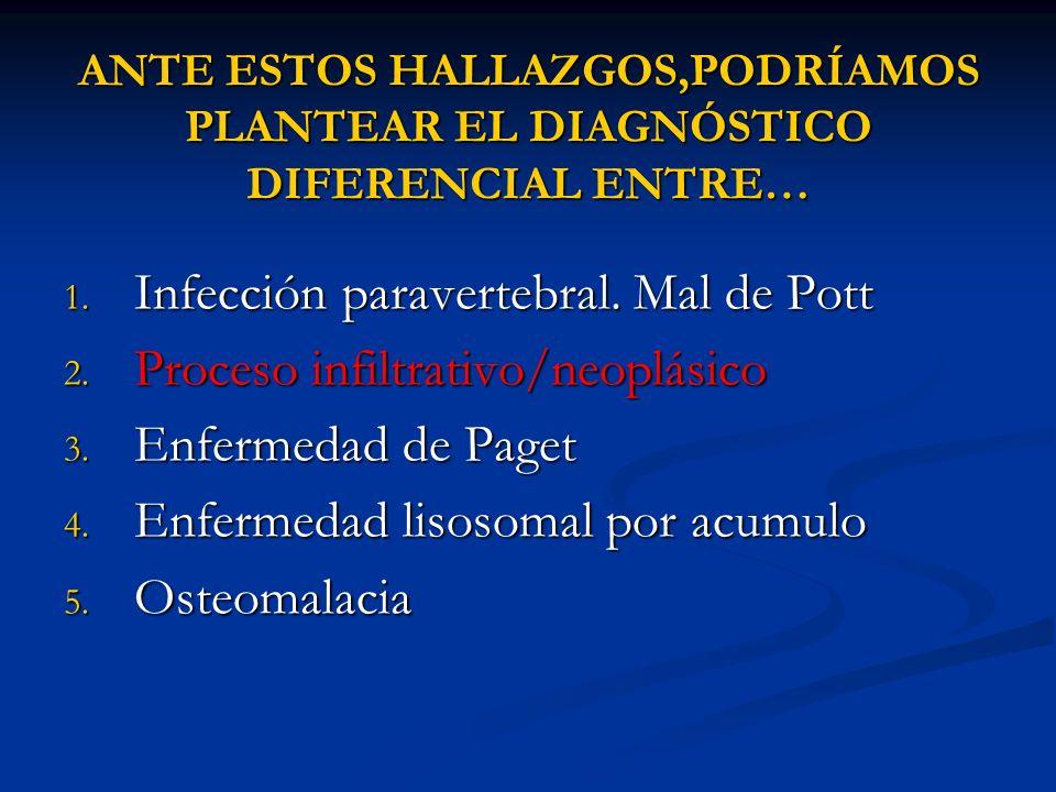 ANTE ESTOS HALLAZGOS,PODRÍAMOS PLANTEAR EL DIAGNÓSTICO DIFERENCIAL ENTRE… 1. Infección paravertebral. Mal de Pott 2. Proceso infiltrativo/neoplásico 3