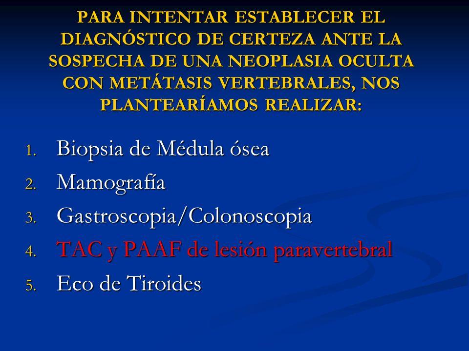 PARA INTENTAR ESTABLECER EL DIAGNÓSTICO DE CERTEZA ANTE LA SOSPECHA DE UNA NEOPLASIA OCULTA CON METÁTASIS VERTEBRALES, NOS PLANTEARÍAMOS REALIZAR: 1.