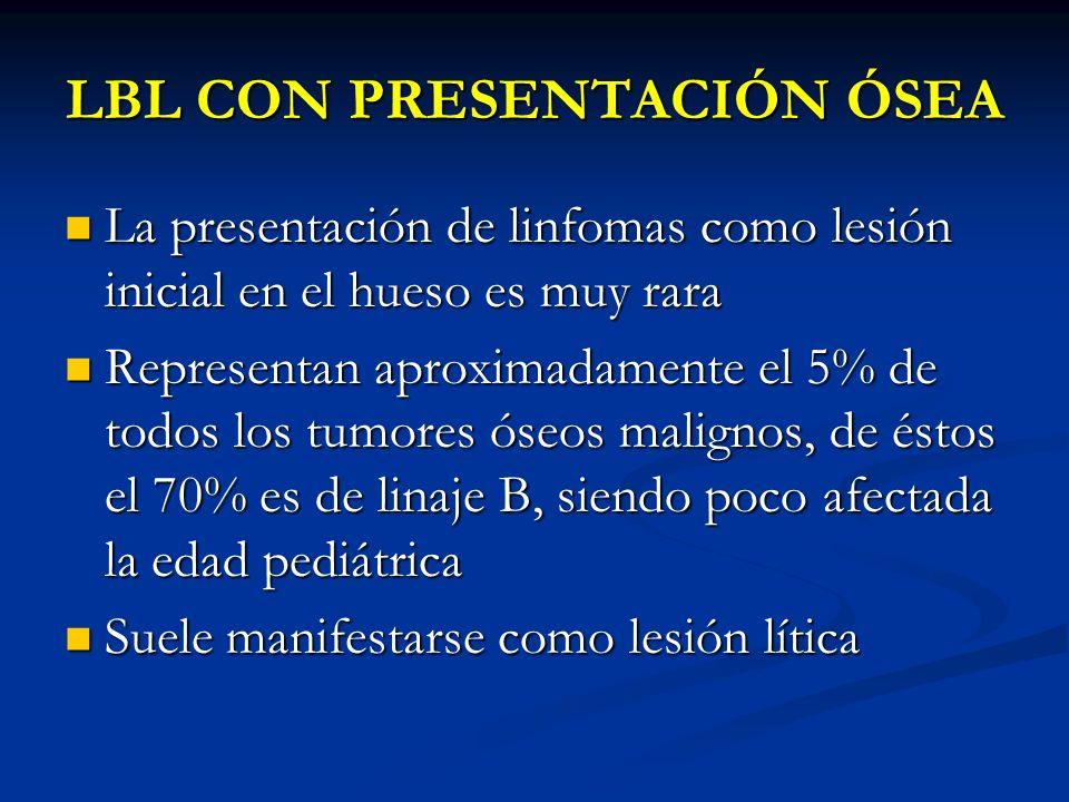 LBL CON PRESENTACIÓN ÓSEA La presentación de linfomas como lesión inicial en el hueso es muy rara La presentación de linfomas como lesión inicial en e
